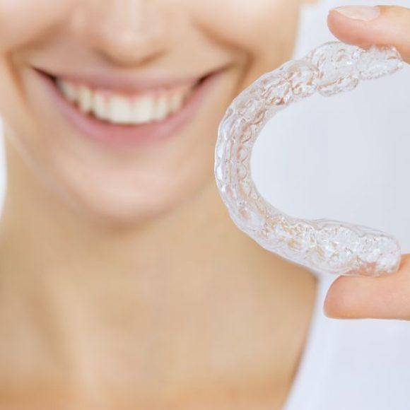 INVISALIGN – Die unsichtbare Zahnspange