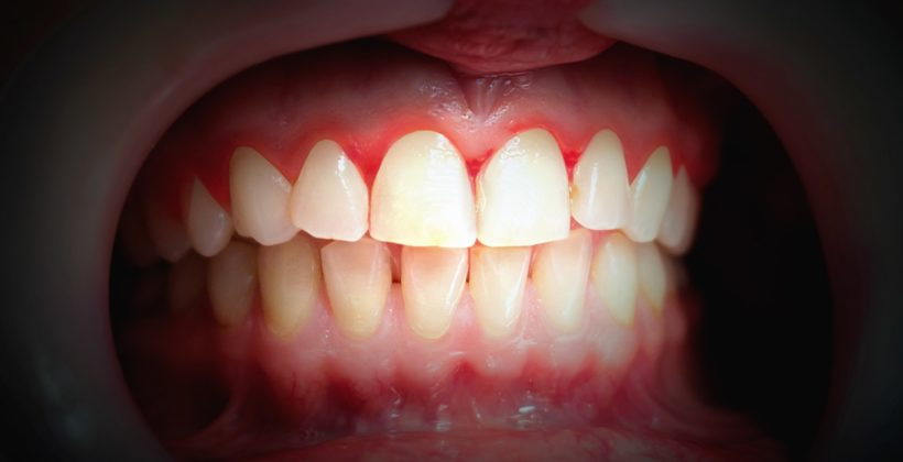 Zahnfleischbluten – eine Volkskrankheit