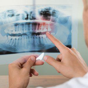 Zahncheck-Kennenlernpaket