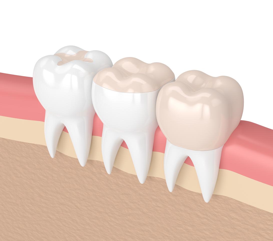 Zahnbehandlungen Budapest